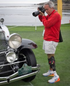 below-knee prosthetics | LIM Innovations